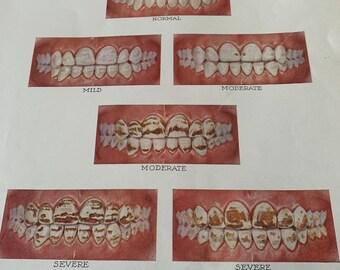 Vintage Dental Pictures of Dental Fluorois