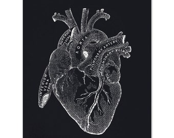 Vintage Anatomy Black Heart Print. Beating heart Educational Biology Chart Diagram Science Classroom - AT004P