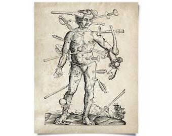 Vintage Anatomy Wounded Man Print w/ optional frame