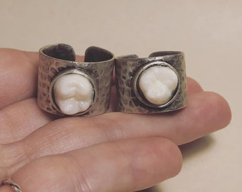 NEW STYLE - Tooth Fairy Series: Real Human Molar with Wide Band Adjustable Ring - Starts at Size 7