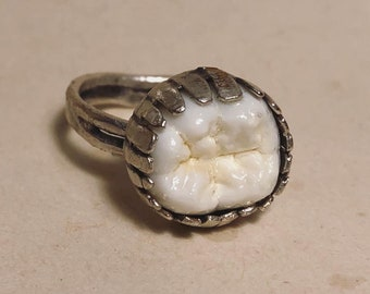 NEW STYLE - Tooth Fairy Series: Real Large Human Molar Crown Adjustable Silver Ring - Starts at Size 6
