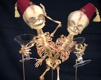 SALE Conjoined Twins Siamese Fetal Skeletons
