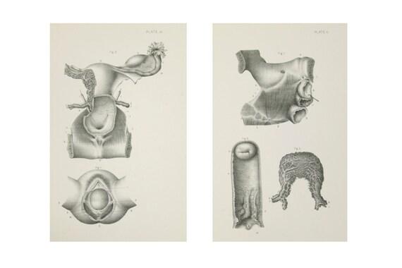 Impresiones anatómicas órganos pélvicos femeninos 1880