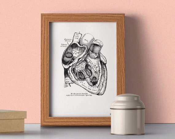 Human Anatomy Heart in black wall art  SKA039WA4