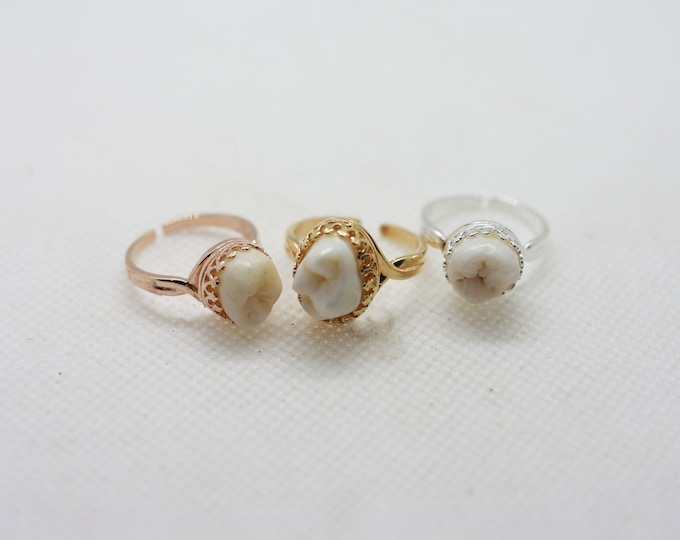 Sweet Tooth Ring (ready to ship)