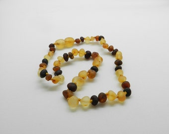 Raw Amber Necklace Etsy