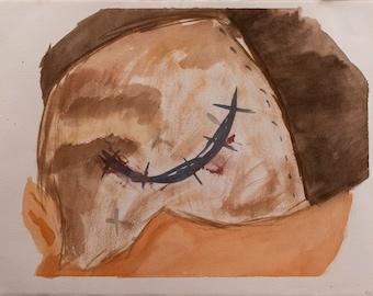 Watercolor Painting on Paper Pseudotumor Cerebri