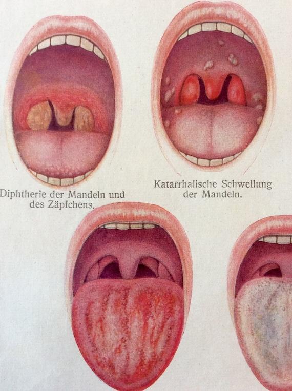 Vintage 1920s boca médico alemán lengua ORAL anatomía | Etsy