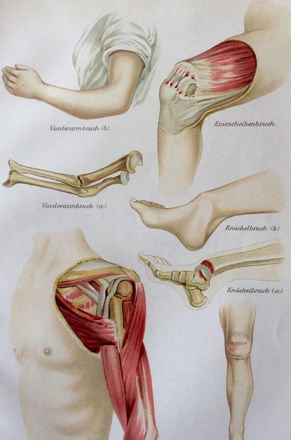 Vintage 1907 alemán músculo hueso fractura cromolitografía   Etsy