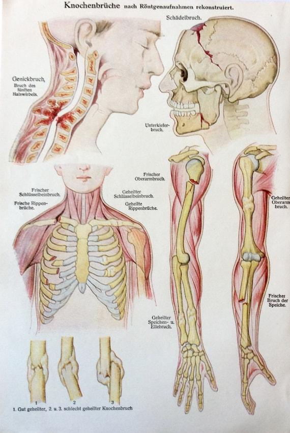 Jahrgang der 1920er Jahre deutsche Medizin Anatomie | Etsy