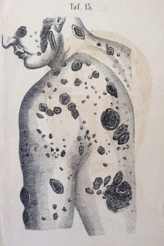 Antiguo grabado anatomía piel enfermedad Bookplate 18 siglo | Etsy