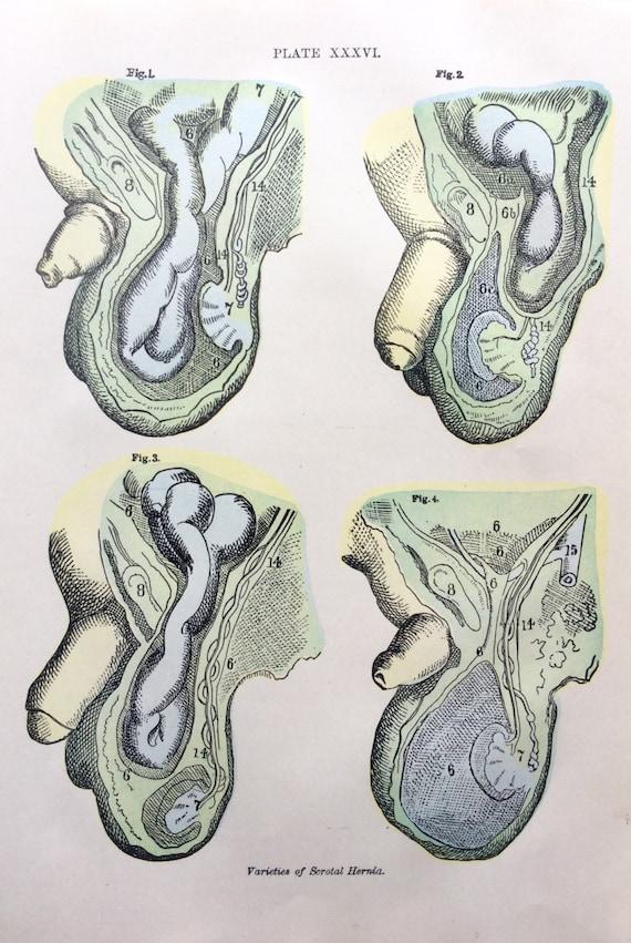 Antike Hodensack Dissektion medizinische Exlibris Anatomie