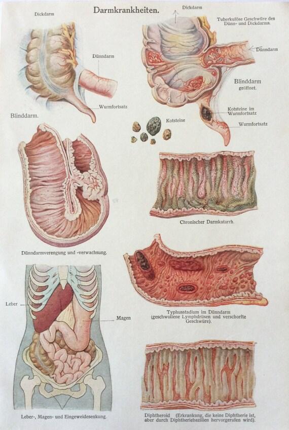 Vintage 1920s anatomía médica alemana órganos enfermedades | Etsy