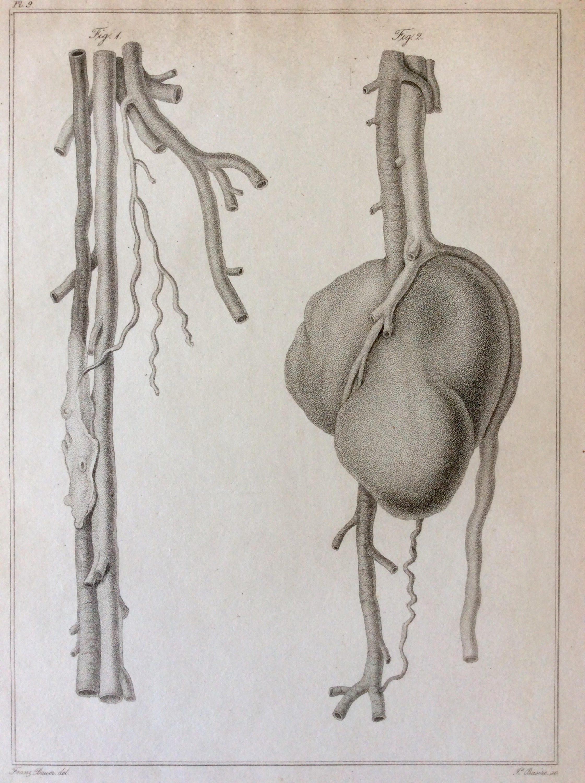 Antike 1828 Anatomie Gravur Tumor Kniekehle Aneurism Ader | Etsy