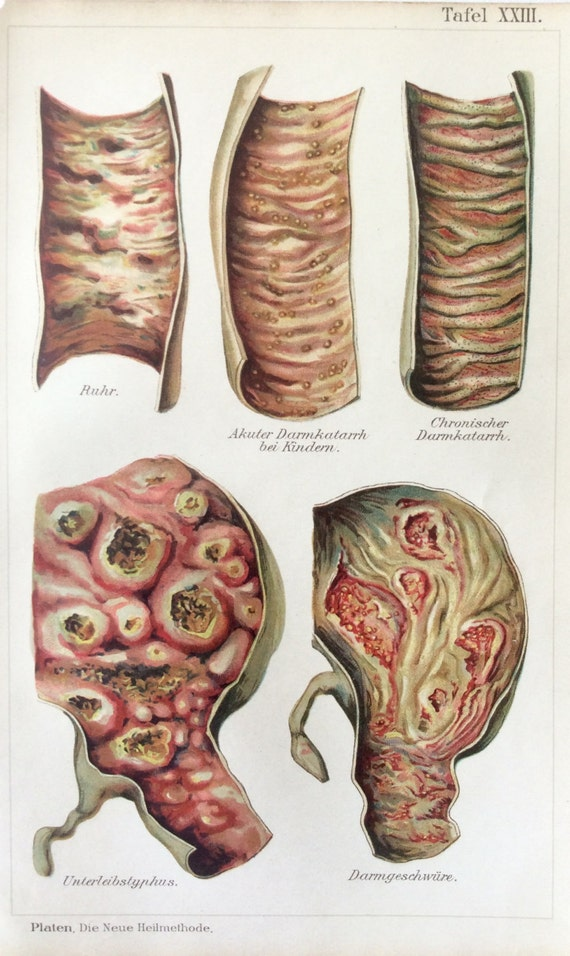 Vintage 1907 alemán disentería fiebre tifoidea Enteritis | Etsy