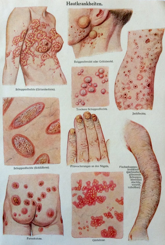 Vintage 1920s anatomía médica alemana piel enfermedad diagrama | Etsy