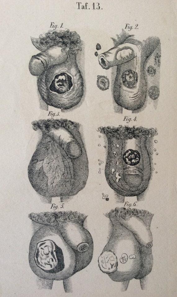 Antiguo grabado anatomía pene TESTÍCULO enfermedad escroto