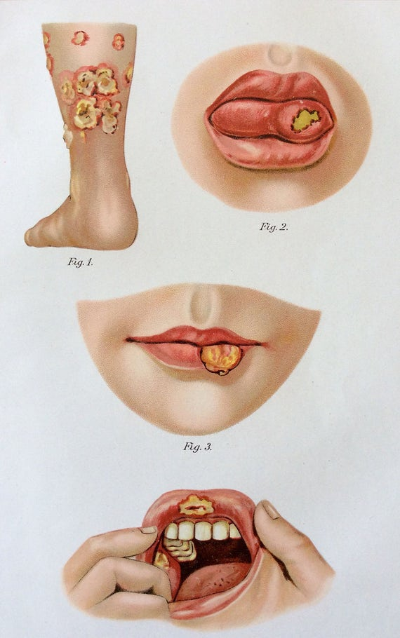 Vintage 1907 anatomía médica alemana diagrama Bookplate | Etsy