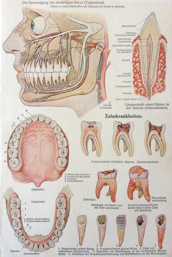 Vintage 1920s anatomía alemán cara disección diente enfermedad | Etsy
