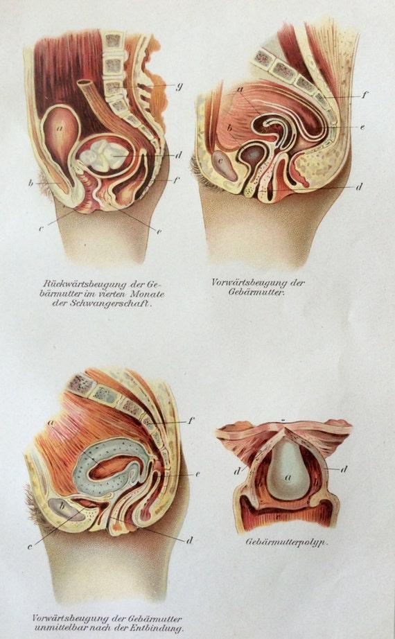 Vintage 1907 embarazo útero anatomía médica alemana diagrama | Etsy