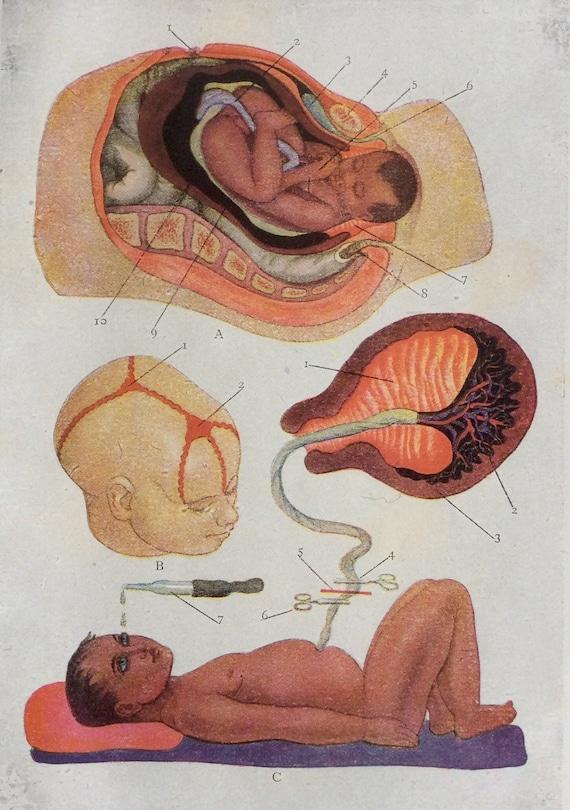 Anatomía francés antiguo Bookplate impresión 1900s 1902 parto