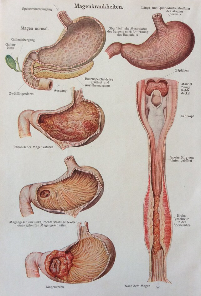 Jahrgang der 1920er Jahre deutsche Medizin Anatomie Organe | Etsy