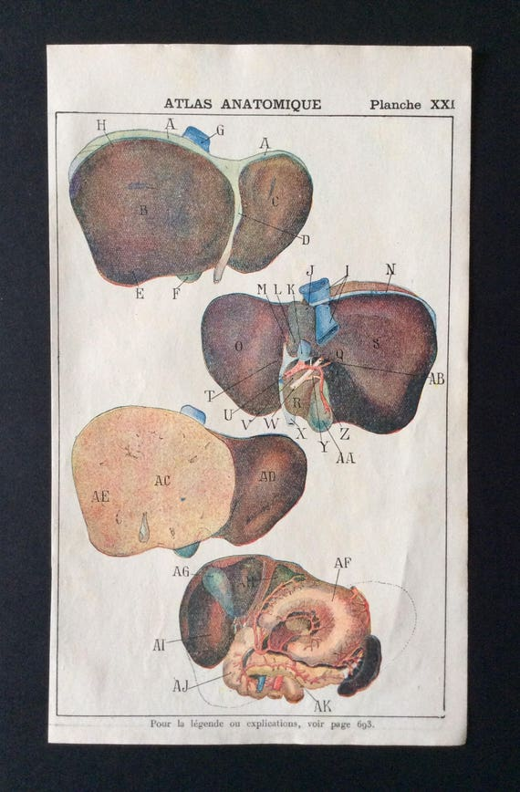Antique French Anatomy Bookplate Print 1910 DISSECTION Medical   Etsy