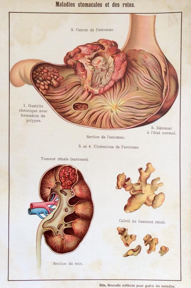 Anatomía francés antiguo cromolitografía Bookplate impresión | Etsy