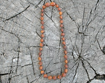 Teething Necklace, Cognac, Baltic Amber, Unpolished - Bracelet, Anklet, or Bellychain (children and adult sizes)