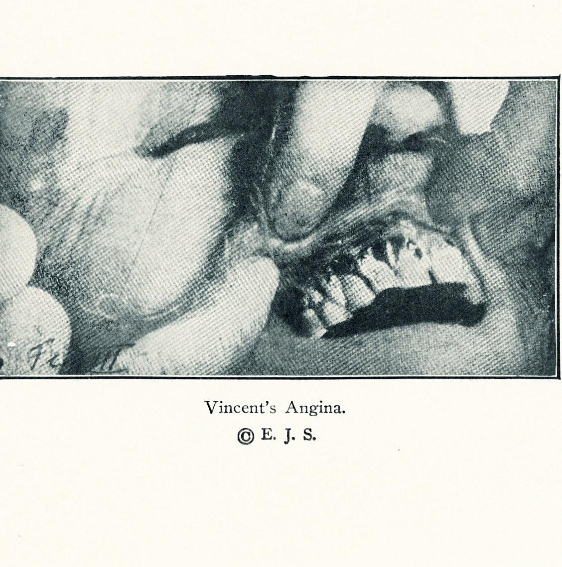 Gum Krankheit Gum Geschwüre Zahnerkrankungen medizinische