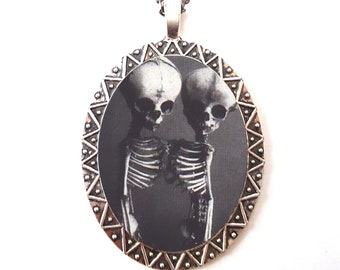 Siamese Twin Skeletons Necklace Pendant Silver Tone - Conjoined Skeleton Goth Gothic Sideshow Circus Freak Dark Art