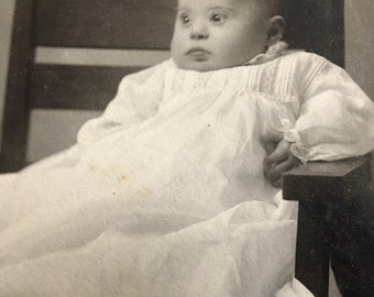 Sweet Down's Syndrome Baby Antique Photo 2 of 2