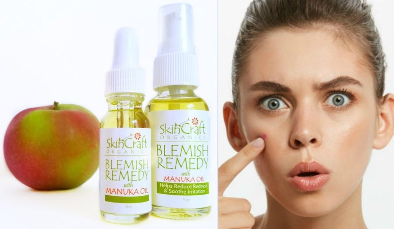 Organic Blemish Pimple Acne Treatment Serum Natural Facial Care For Breakouts Thyme Manuka Tea Tree And Tamanu Oils 5 Oz