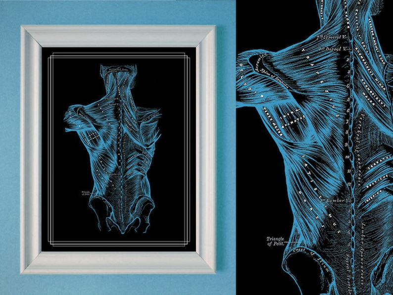 Customize a Massage Poster Back Muscles Anatomical Reference Physical Therapy Chiropratic artwork