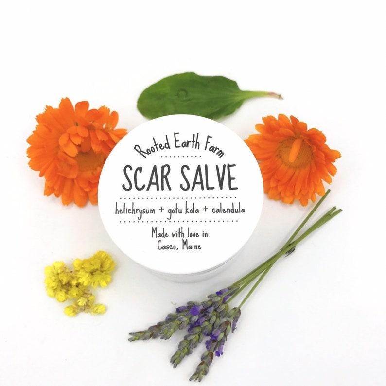 Scar Salve, Acne Scars, Injury Scars, Acne Scar, Scar Treatment, Acne Scar  Cream, Scar Cream, Acne Scar Healing, Healing Salve, Tattoo Balm