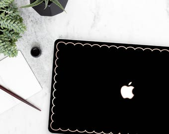 Platinum Edition . Macbook Pro 13 Case Elegant Black Scallop Macbook Case .  Distinctive   Macbook Pro 13 A1989 A2159 . Pro 16 Touch A2141