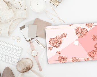 Pink Love Shades Rose Gold Macbook Hard Case . Distinctive Hand-Made Macbook Hard Case with Bold Rose Gold Accents . Macbook Pro 13 Case