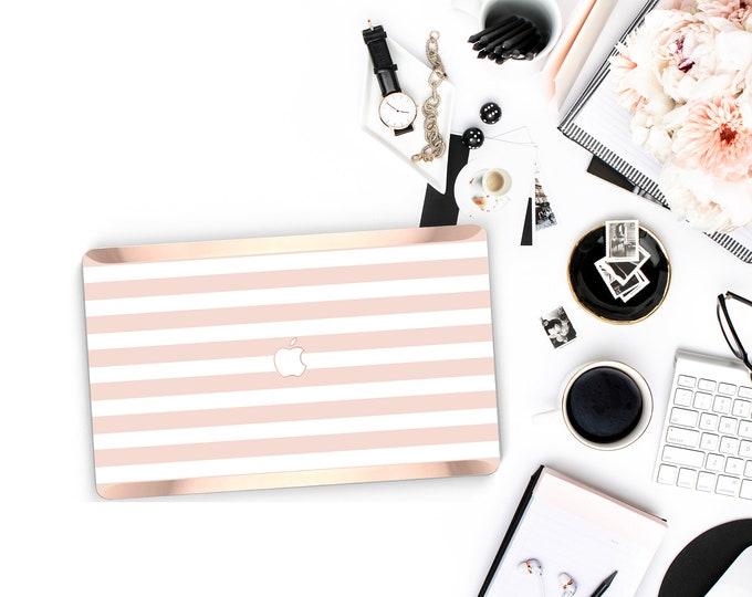 Platinum Macbook Case