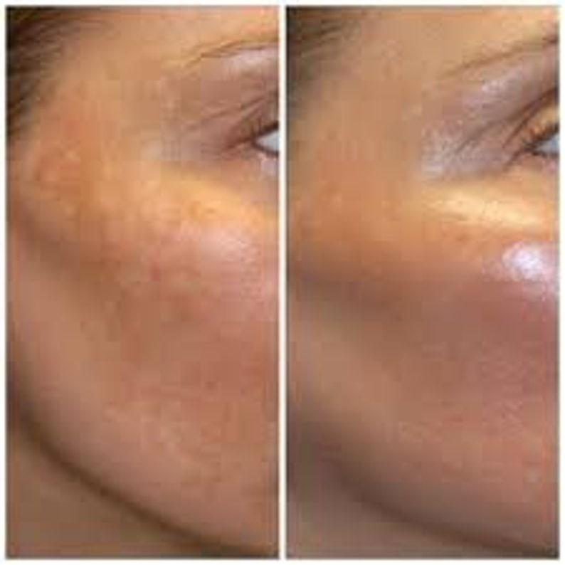 African Black Soap Clear Skin Kit Sensitive Care image 0