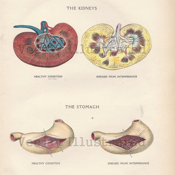Effects Of Alcohol On Stomach And Kidneys Human Anatomy Etsy