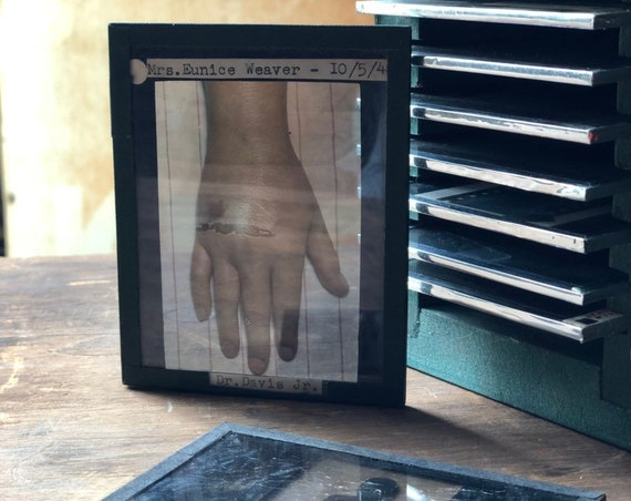 145 Vintage Medical Slides, Glass Medical Slides, Medical Oddities And Curiosities, Educational Anatomy Slides, Medical Art