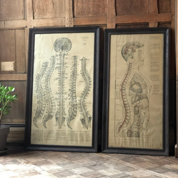 Pair of Antique Medical Charts, Nervous System And Spine, Antique Anatomical Chart, Medical School Teaching Aid, Anatomy Art, Medical Oddity