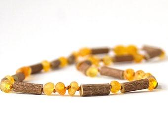 """Hazelwood with Raw Unpolished Baltic Amber Jewelry - Necklace, Bracelet & Anklet - Lemonade/Light, sizes 7""""-24"""""""
