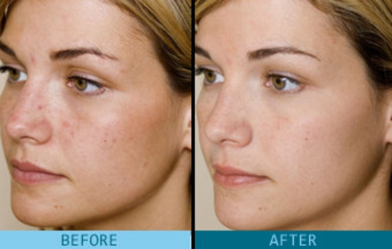 glycolic acid for face