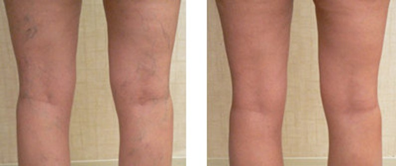 is vitamin k good for spider veins