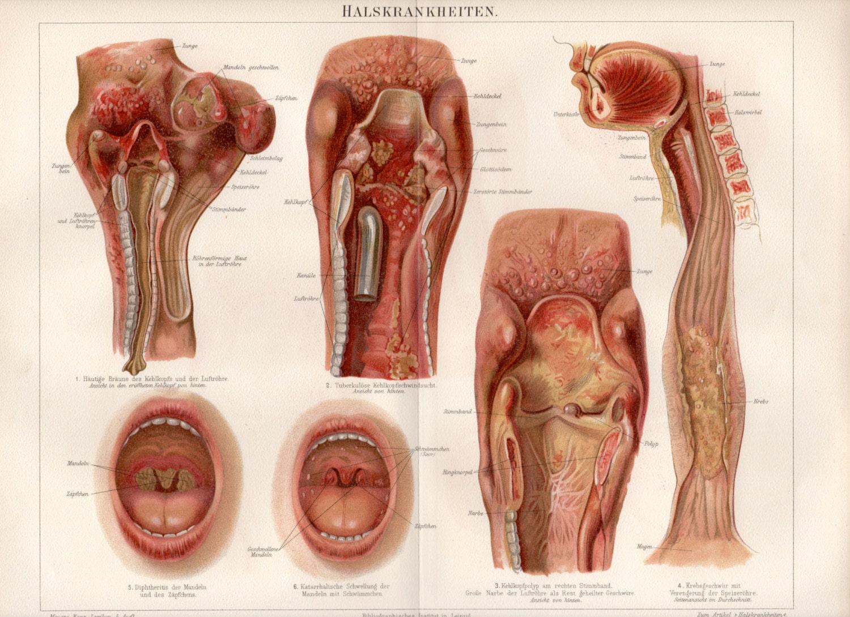 1895 antiken Anatomie alte Gemälde Gravur Halskrakenheiten | Etsy