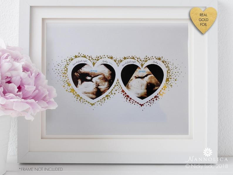 Personalised Baby Scan Ultrasound art Pregnancy Keepsake image 0