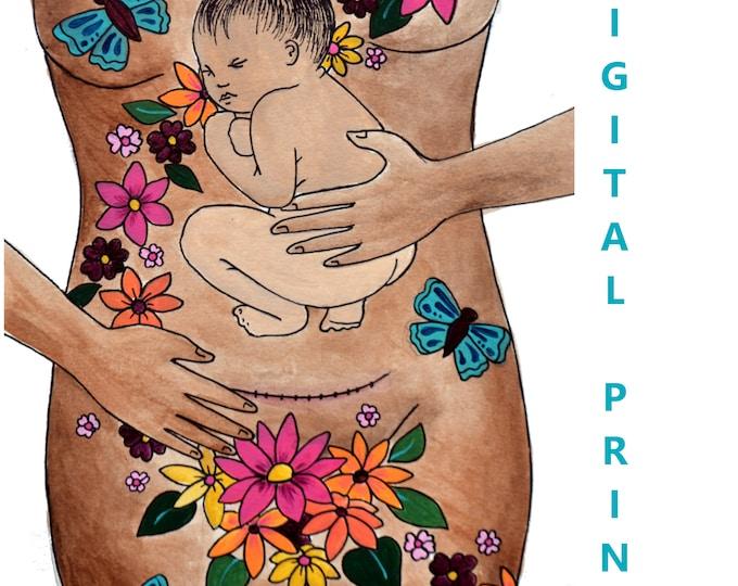 "DIGITAL ""Transform"" print/poster /Birth Art/ csection/ cesarean birth/ doula/ gift for new mom"
