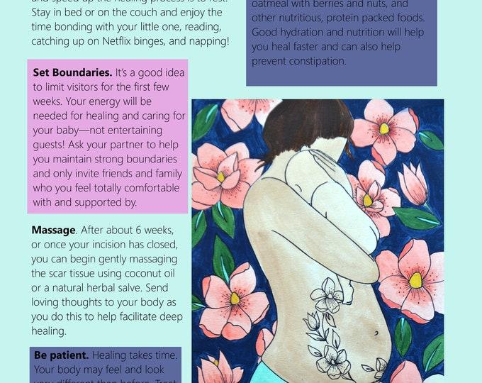 Cesarean Birth Education Slides/ Set 2/ Slides 6-10/ PDFs/ Midwife/ Doula/ Birth Education