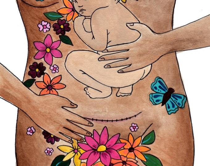 "TRANSFORM/ 8.5"" x 11"" original art print/ cesarean birth/ csection/ new mama/ healing art"